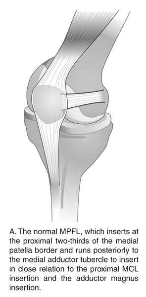 Normal MPFL Patellar LIgament